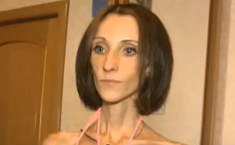 Как сложилась судьба героини «Пусть говорят», которая в 19 лет весила 26 кг