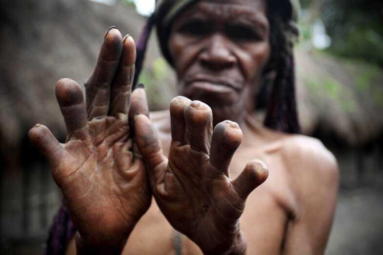 Покалечить ради красоты: ужасающие традиции племен и народов-23 фото-