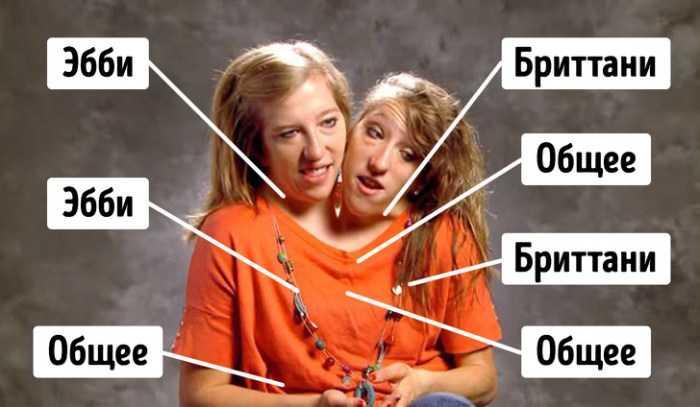 Как сложилась судьба самых знаменитых близнецов, которые делят одно тело на двоих