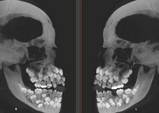 А это снимок человека с гипердонтией (аномалия числа зубов)