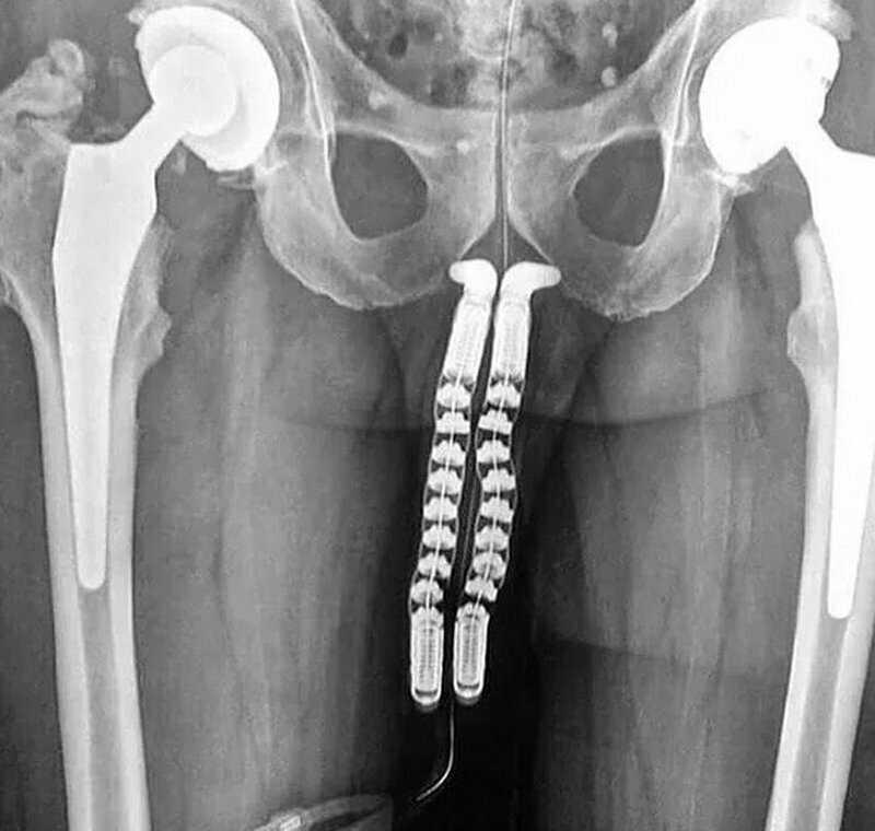 На фото: процесс смены пола: вы видите рентген-снимок пациента на этапе трансплантации полового органа