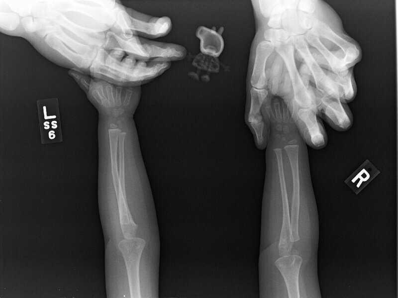 Дочь этой женщины отказывалась делать рентген без Свинки Пеппы