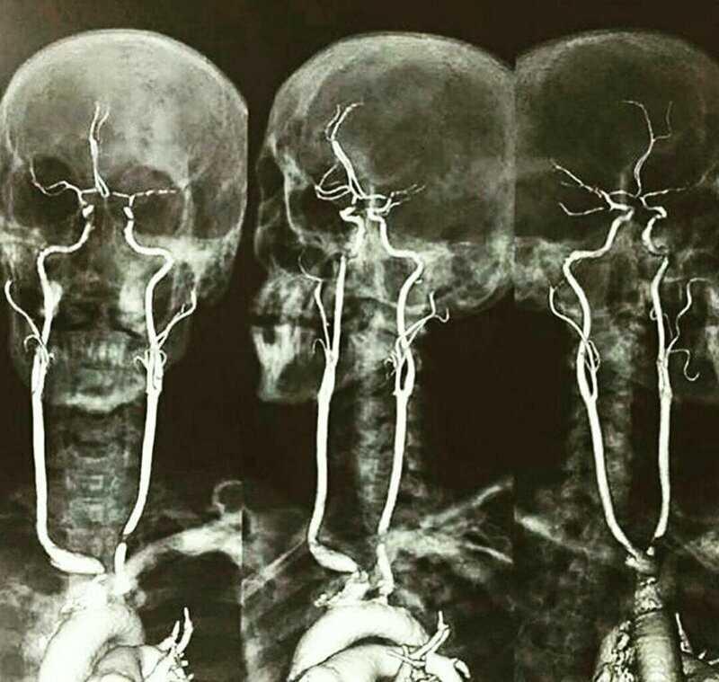 А это рентген с контрастированием сонных артерий. Выглядит жутковато только для непосвященных