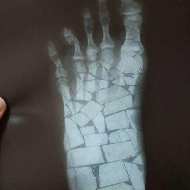 Пациент выслал фото врачу. Тот долго не мог понять, что со стопой